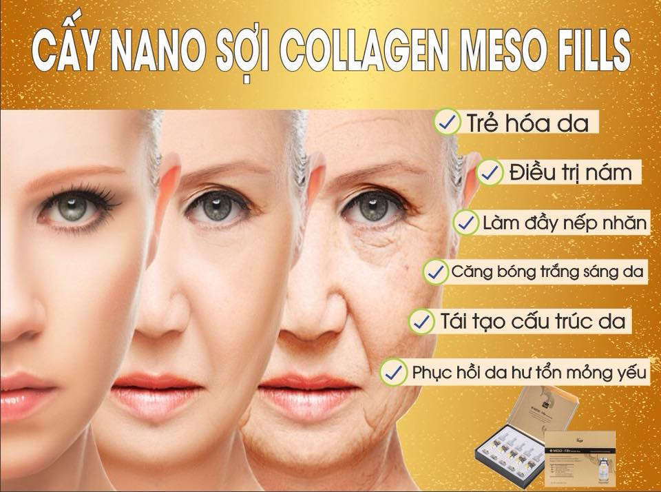 Image result for cấy sợi collagen-meso fill
