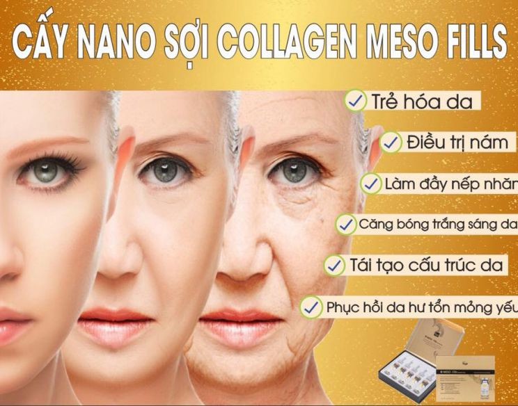 Cấy NANO sợi collagen Meso Fills